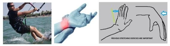 wrist arm joints mallorca kiteschool avoid kitesurfing injuries